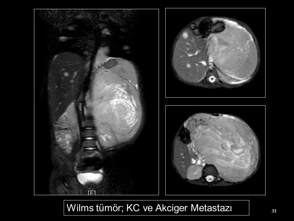 31 Wilms tümör; KC ve Akciger Metastazı