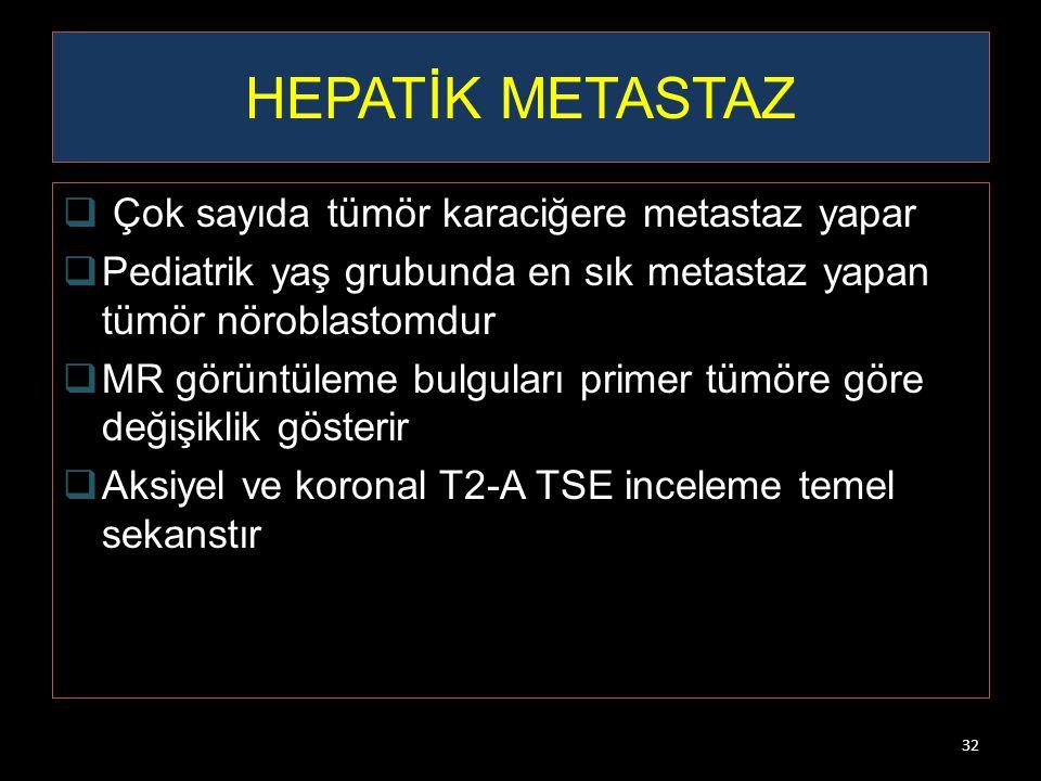32 HEPATİK METASTAZ  Çok sayıda tümör karaciğere metastaz yapar  Pediatrik yaş grubunda en sık metastaz yapan tümör nöroblastomdur  MR görüntüleme