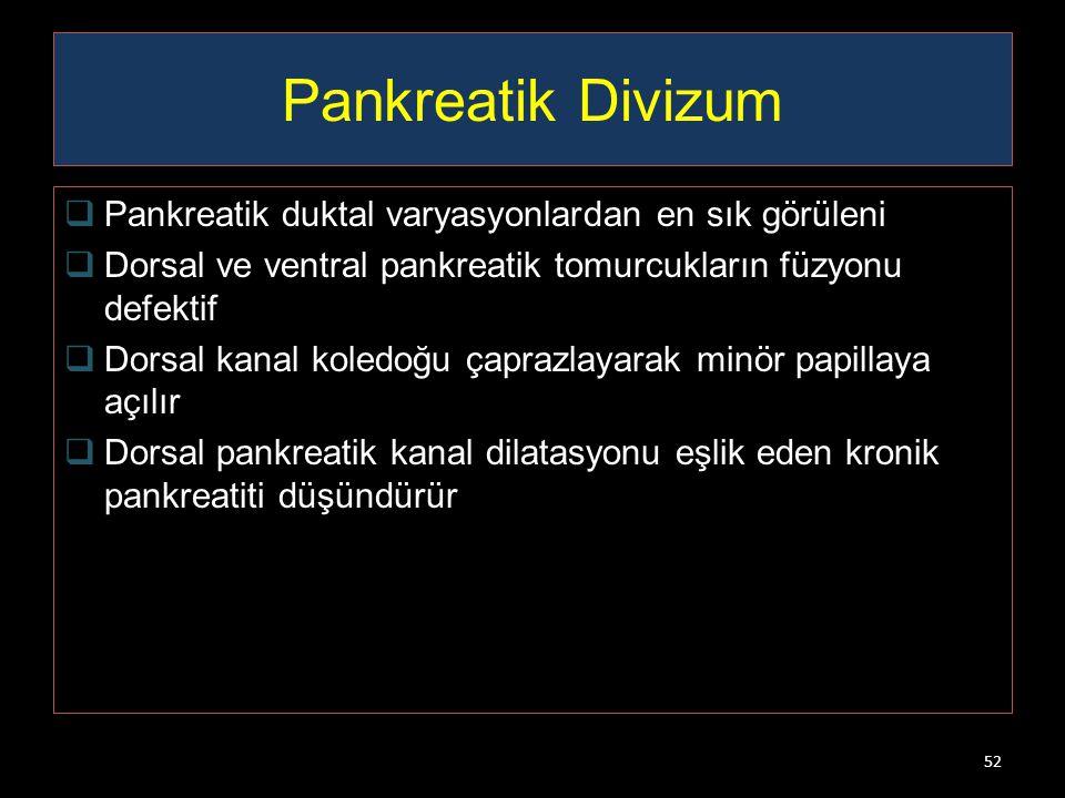 Pankreatik Divizum  Pankreatik duktal varyasyonlardan en sık görüleni  Dorsal ve ventral pankreatik tomurcukların füzyonu defektif  Dorsal kanal ko