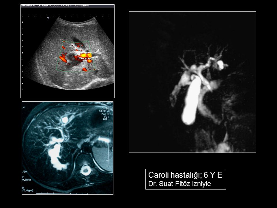 Caroli hastalığı; 6 Y E Dr. Suat Fitöz izniyle