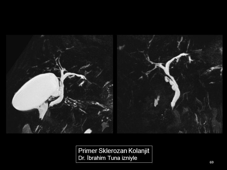 69 Primer Sklerozan Kolanjit Dr. İbrahim Tuna izniyle