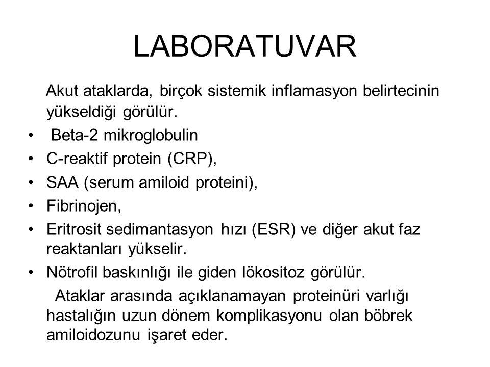 LABORATUVAR Akut ataklarda, birçok sistemik inflamasyon belirtecinin yükseldiği görülür. Beta-2 mikroglobulin C-reaktif protein (CRP), SAA (serum amil
