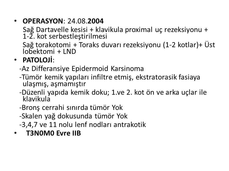 OPERASYON: 24.08.2004 Sağ Dartavelle kesisi + klavikula proximal uç rezeksiyonu + 1-2. kot serbestleştirilmesi Sağ torakotomi + Toraks duvarı rezeksiy