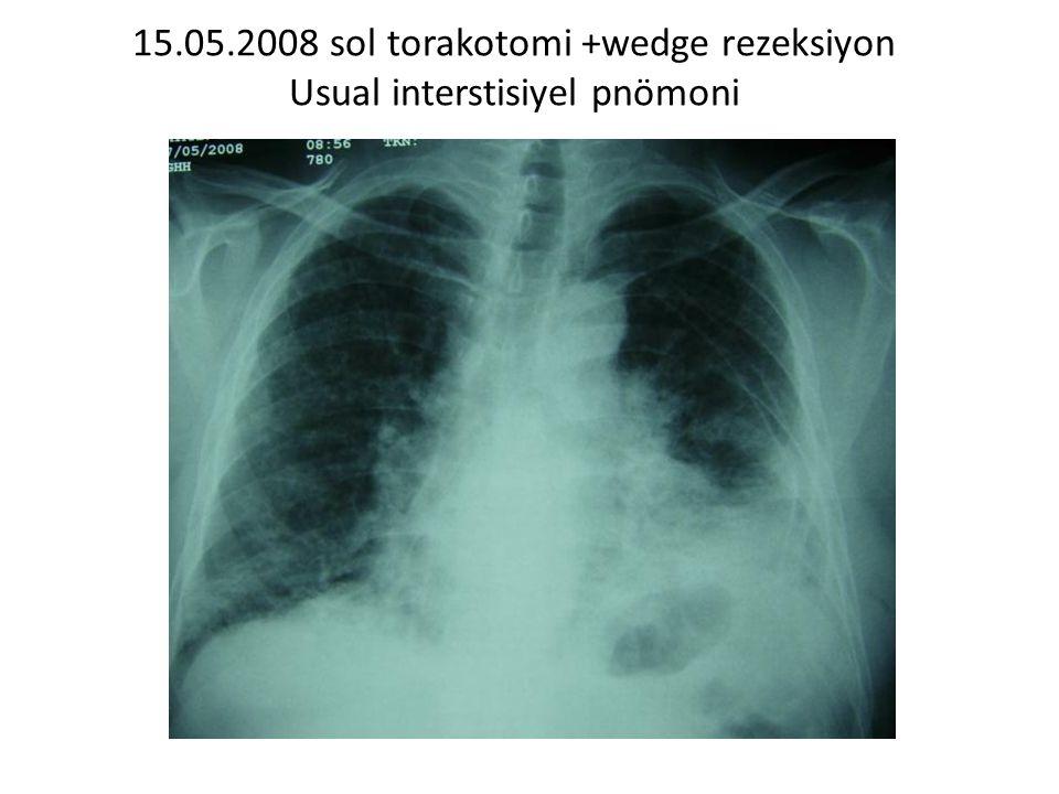 15.05.2008 sol torakotomi +wedge rezeksiyon Usual interstisiyel pnömoni