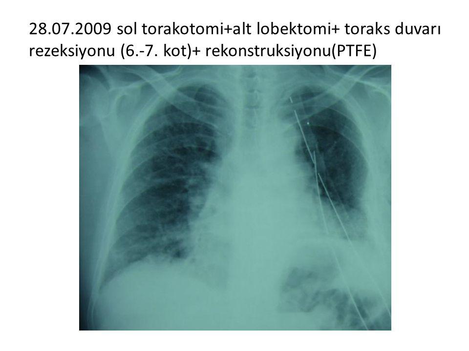 28.07.2009 sol torakotomi+alt lobektomi+ toraks duvarı rezeksiyonu (6.-7. kot)+ rekonstruksiyonu(PTFE)