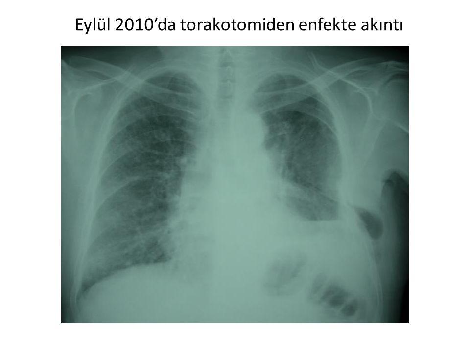 Eylül 2010'da torakotomiden enfekte akıntı