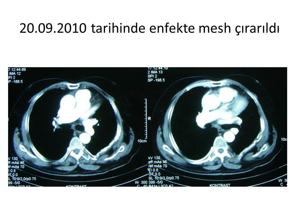 20.09.2010 tarihinde enfekte mesh çırarıldı