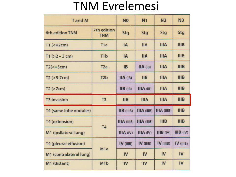 TNM Evrelemesi