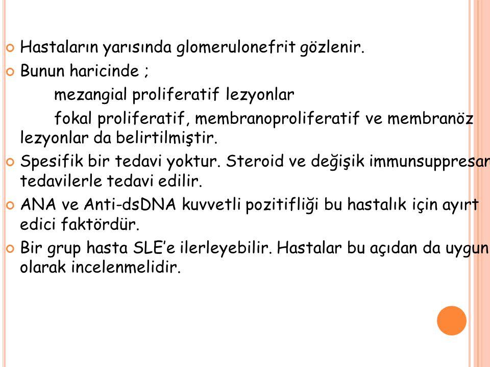 Hastaların yarısında glomerulonefrit gözlenir.