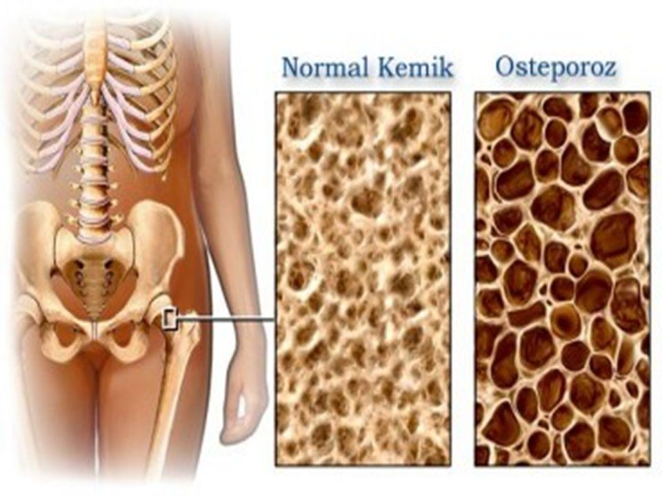 Osteoporozun tanımlanması; hastalığa ait risk faktörleri ile birlikte kemik yoğunluk ölçümlerinin birlikte değerlendirilmesi ile yapılmaktadır.