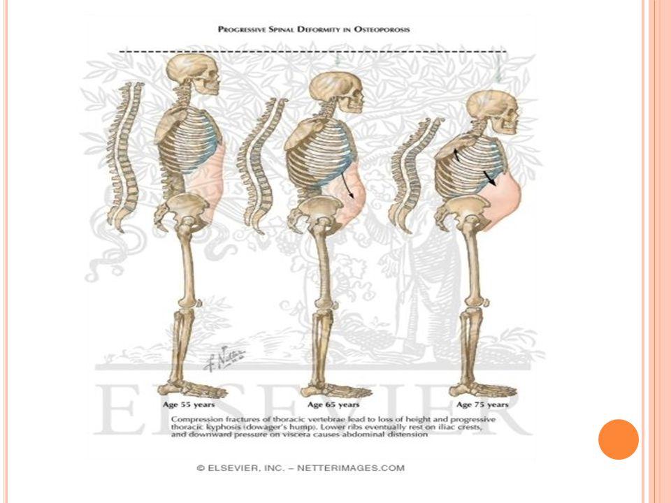 Osteoporoz oluşumu ile ilişkili belli başlı risk faktörleri: Yaş ilerledikçe osteoporoz riski artmaktadır, özellikle kadınlarda 65 yaş üzerinde ve erkeklerde 70 yaş üzerinde 40 yaştan sonra travma olmaksızın veya çok ufak travma ile geçirilmiş kırık öyküsü Kadınlarda düşük östrojen, erkeklerde düşük testosteron düzeyleri Kadın ve erkeklerde düşük vücut ağırlığı Sigara içiyor olmak veya geçmişte sigara içme öyküsü Boy uzunluğunda azalma Birinci derece yakınında osteoporoz ve/veya kırık öyküsü Bazı hastalıkların bulunması Bazı ilaçların sürekli kullanımı