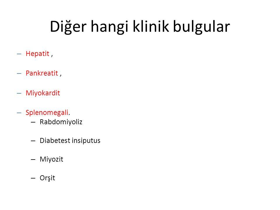 Diğer hangi klinik bulgular – Hepatit, – Pankreatit, – Miyokardit – Splenomegali. – Rabdomiyoliz – Diabetest insiputus – Miyozit – Orşit