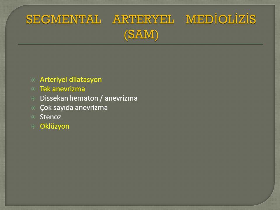  Arteriyel dilatasyon  Tek anevrizma  Dissekan hematon / anevrizma  Çok sayıda anevrizma  Stenoz  Oklüzyon