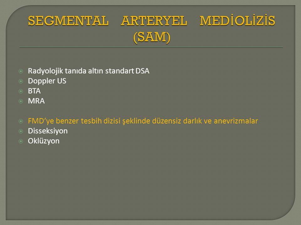  Radyolojik tanıda altın standart DSA  Doppler US  BTA  MRA  FMD'ye benzer tesbih dizisi şeklinde düzensiz darlık ve anevrizmalar  Disseksiyon  Oklüzyon