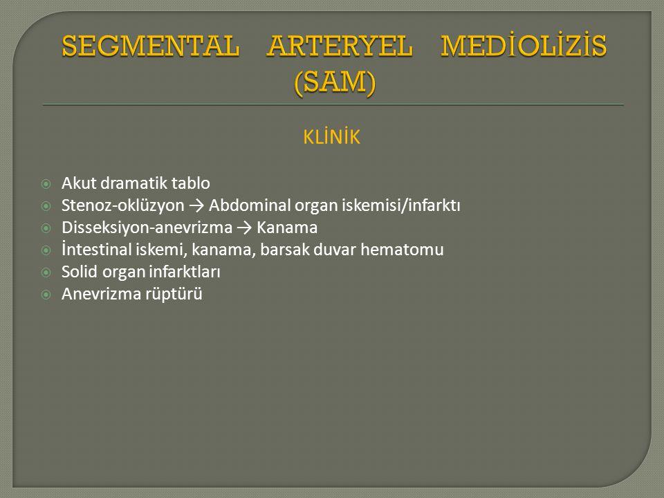 KLİNİK  Akut dramatik tablo  Stenoz-oklüzyon → Abdominal organ iskemisi/infarktı  Disseksiyon-anevrizma → Kanama  İntestinal iskemi, kanama, barsak duvar hematomu  Solid organ infarktları  Anevrizma rüptürü