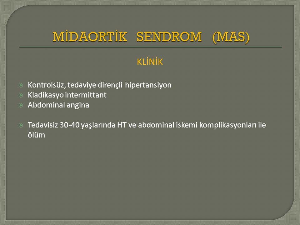 KLİNİK  Kontrolsüz, tedaviye dirençli hipertansiyon  Kladikasyo intermittant  Abdominal angina  Tedavisiz 30-40 yaşlarında HT ve abdominal iskemi komplikasyonları ile ölüm
