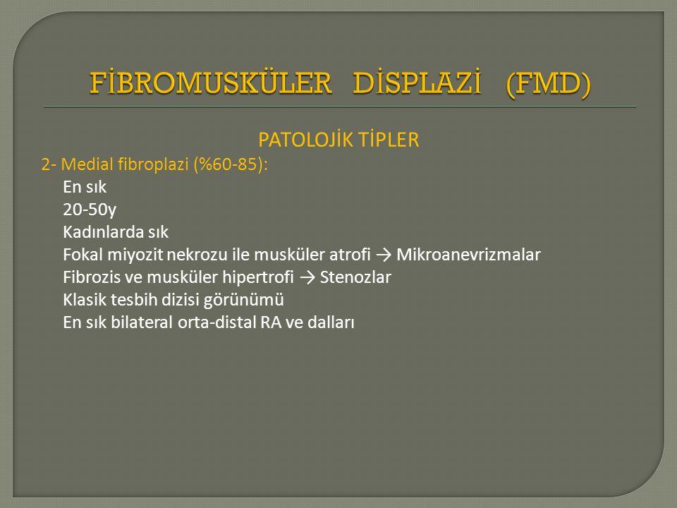 PATOLOJİK TİPLER 2- Medial fibroplazi (%60-85): En sık 20-50y Kadınlarda sık Fokal miyozit nekrozu ile musküler atrofi → Mikroanevrizmalar Fibrozis ve musküler hipertrofi → Stenozlar Klasik tesbih dizisi görünümü En sık bilateral orta-distal RA ve dalları