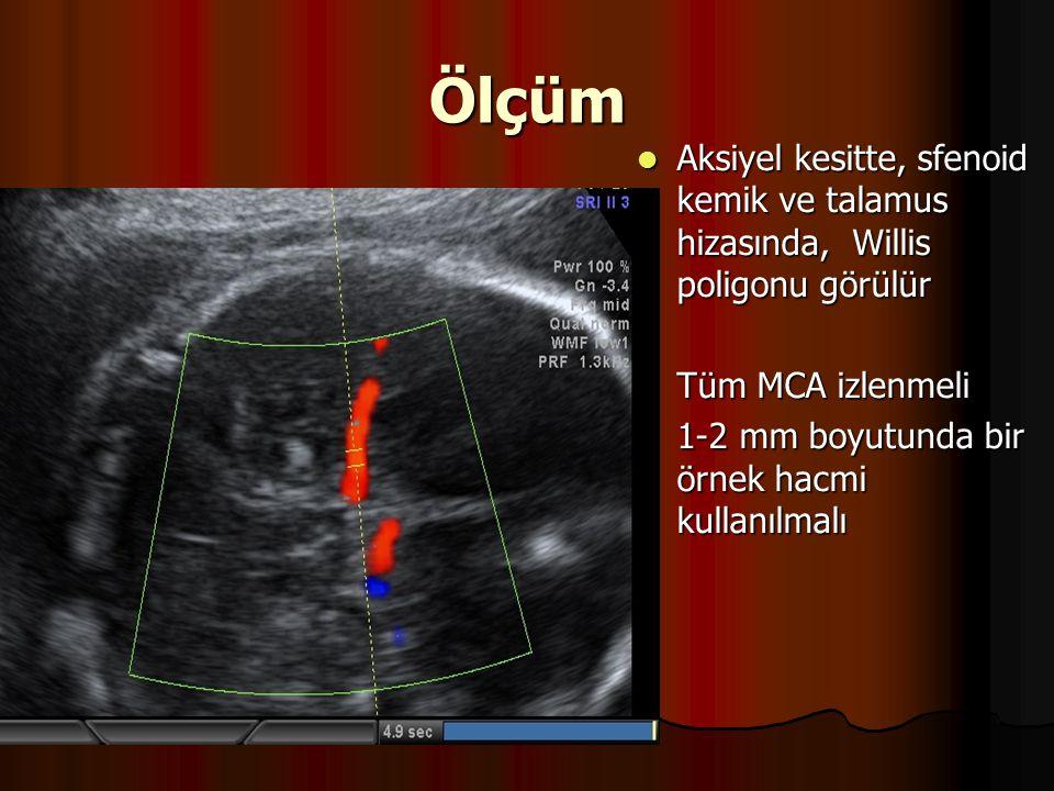 Ölçüm Aksiyel kesitte, sfenoid kemik ve talamus hizasında, Willis poligonu görülür Aksiyel kesitte, sfenoid kemik ve talamus hizasında, Willis poligon