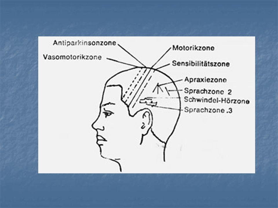 BAZI TERİMLER Paraparezi - parapleji: Tr. corticospinalis lezyonlarında her iki alt ya da her iki üst ekstremitede görülen parazi ya da felç. Quadripa