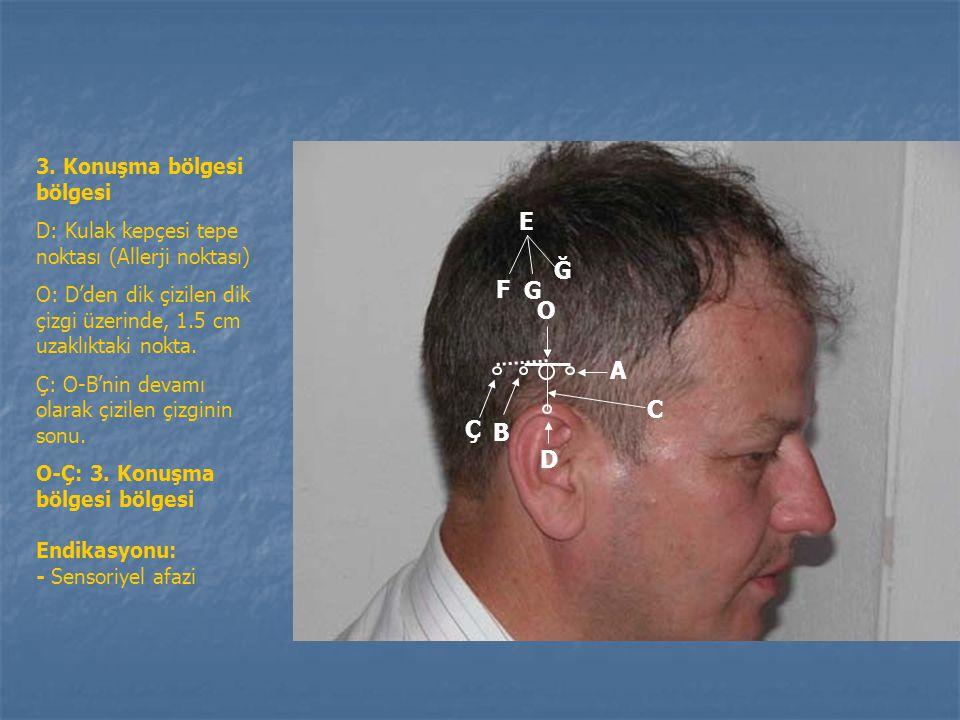 C B AA O İç kulağa bağlı başdönmesi ve duyma bölgesi D: Kulak kepçesi tepe noktası O: D'den dik çizilen dik çizgi üzerinde, 1.5 cm uzaklıktaki nokta A