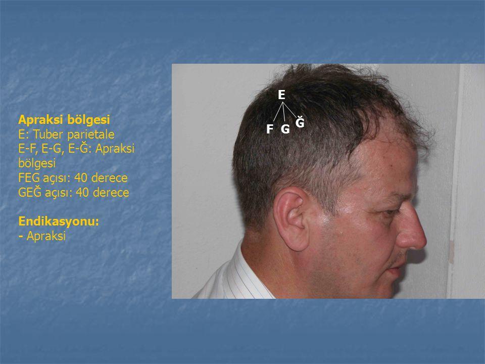 3. Konuşma bölgesi bölgesi D: Kulak kepçesi tepe noktası (Allerji noktası) O: D'den dik çizilen dik çizgi üzerinde, 1.5 cm uzaklıktaki nokta. Ç: O-B'n