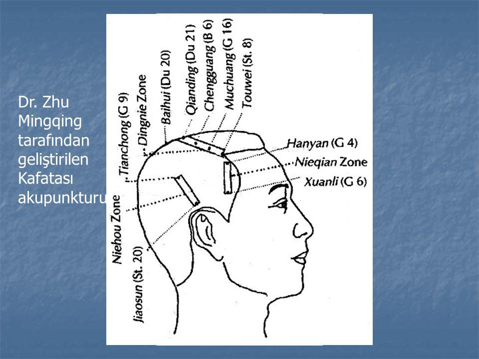 Dr. Zhu Mingqing tarafından geliştirilen Kafatası akupunkturu