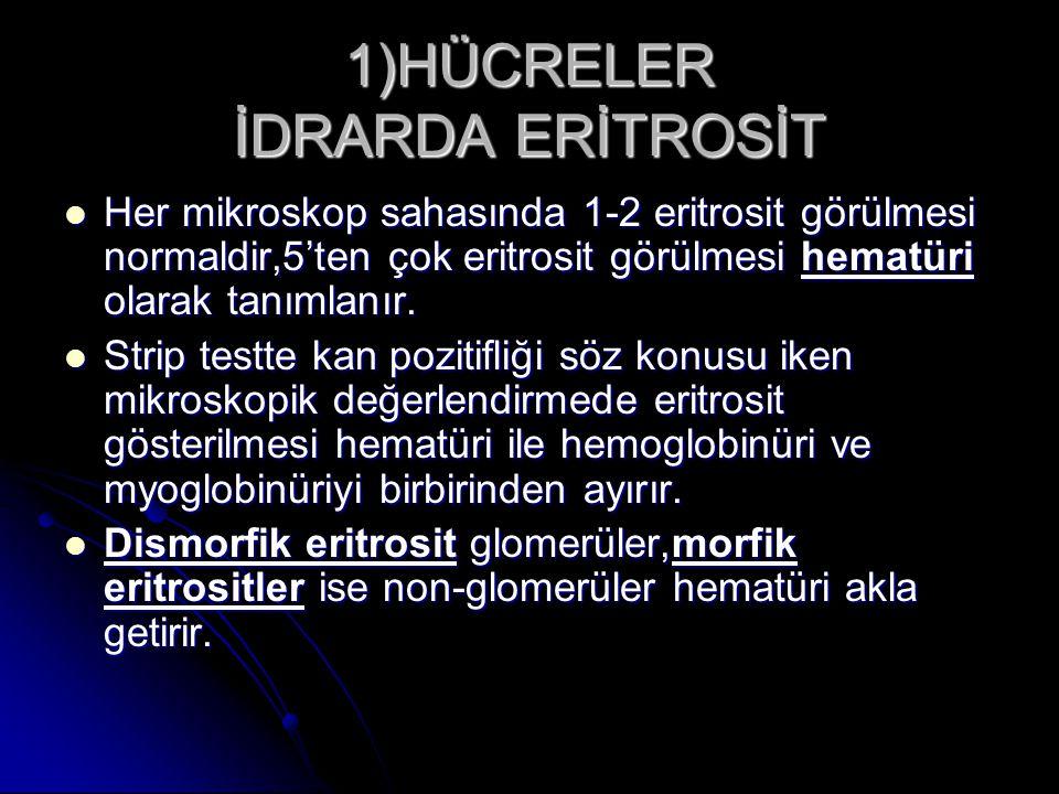 1)HÜCRELER İDRARDA ERİTROSİT Her mikroskop sahasında 1-2 eritrosit görülmesi normaldir,5'ten çok eritrosit görülmesi hematüri olarak tanımlanır. Her m