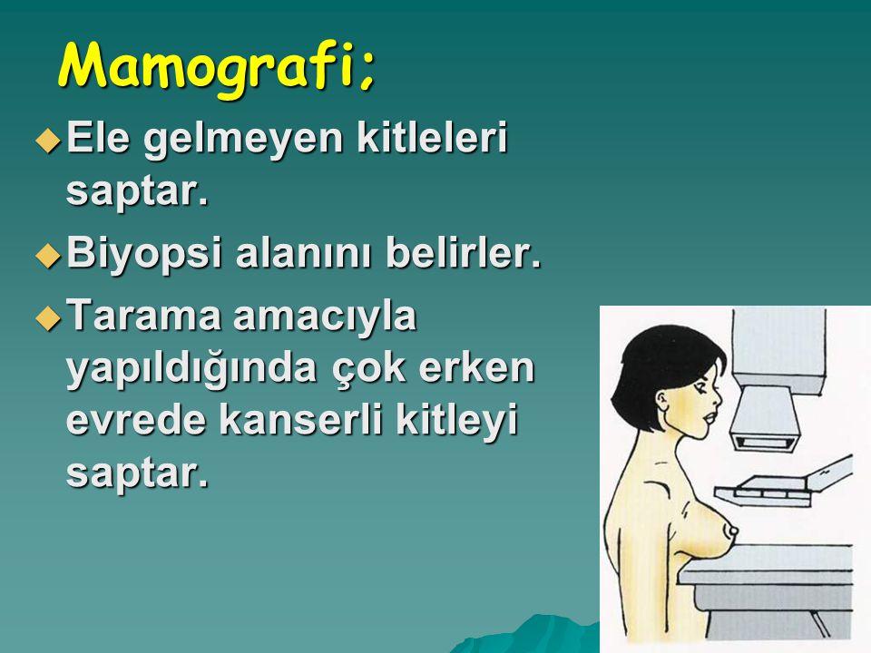 Mamografi; Mamografi;  Ele gelmeyen kitleleri saptar.  Biyopsi alanını belirler.  Tarama amacıyla yapıldığında çok erken evrede kanserli kitleyi sa
