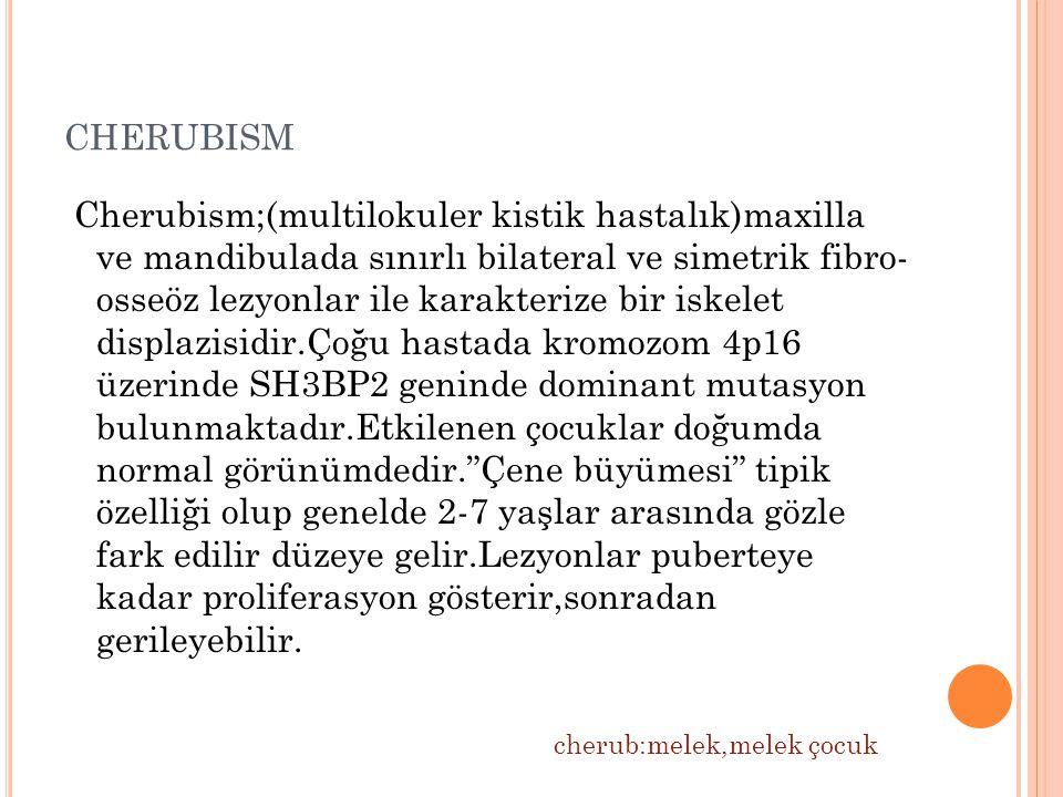 CHERUBISM Cherubism;(multilokuler kistik hastalık)maxilla ve mandibulada sınırlı bilateral ve simetrik fibro- osseöz lezyonlar ile karakterize bir iskelet displazisidir.Çoğu hastada kromozom 4p16 üzerinde SH3BP2 geninde dominant mutasyon bulunmaktadır.Etkilenen çocuklar doğumda normal görünümdedir. Çene büyümesi tipik özelliği olup genelde 2-7 yaşlar arasında gözle fark edilir düzeye gelir.Lezyonlar puberteye kadar proliferasyon gösterir,sonradan gerileyebilir.