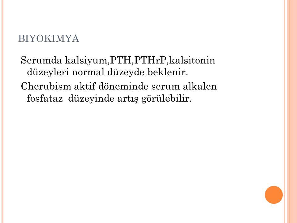BIYOKIMYA Serumda kalsiyum,PTH,PTHrP,kalsitonin düzeyleri normal düzeyde beklenir. Cherubism aktif döneminde serum alkalen fosfataz düzeyinde artış gö