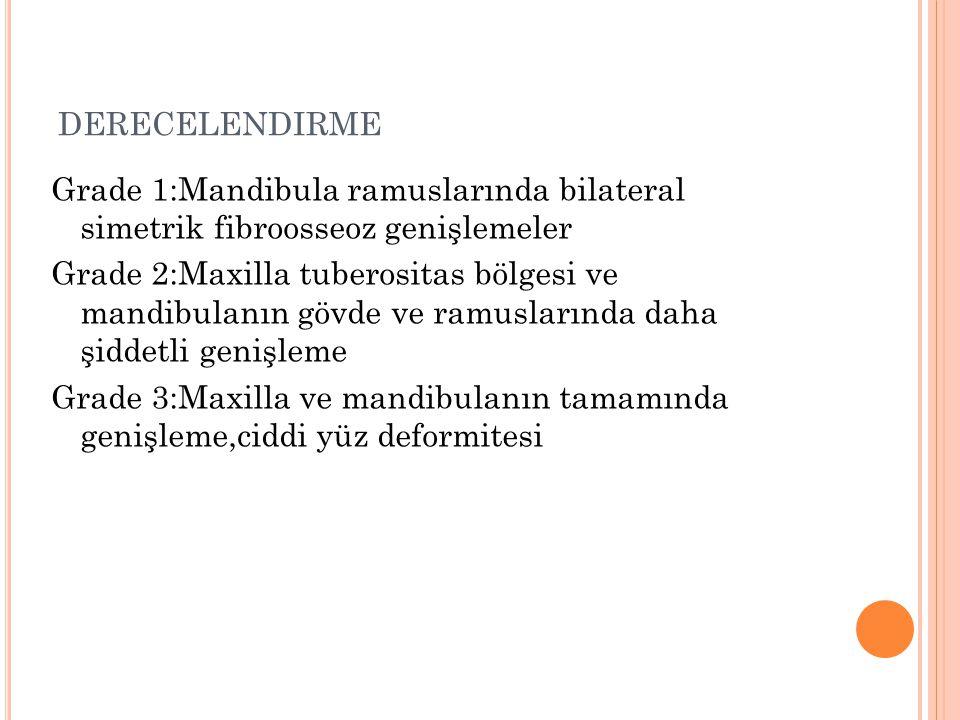 DERECELENDIRME Grade 1:Mandibula ramuslarında bilateral simetrik fibroosseoz genişlemeler Grade 2:Maxilla tuberositas bölgesi ve mandibulanın gövde ve