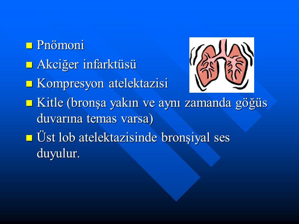 Pnömoni Pnömoni Akciğer infarktüsü Akciğer infarktüsü Kompresyon atelektazisi Kompresyon atelektazisi Kitle (bronşa yakın ve aynı zamanda göğüs duvarı