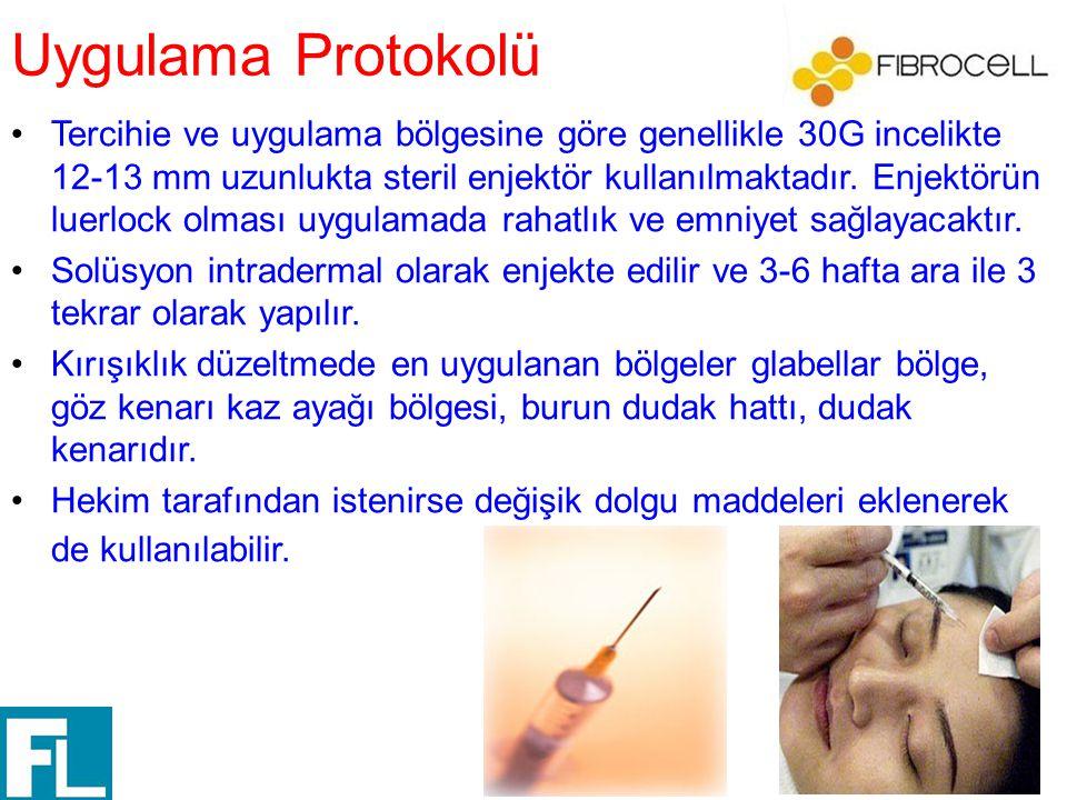 Uygulama Protokolü Tercihie ve uygulama bölgesine göre genellikle 30G incelikte 12-13 mm uzunlukta steril enjektör kullanılmaktadır. Enjektörün luerlo