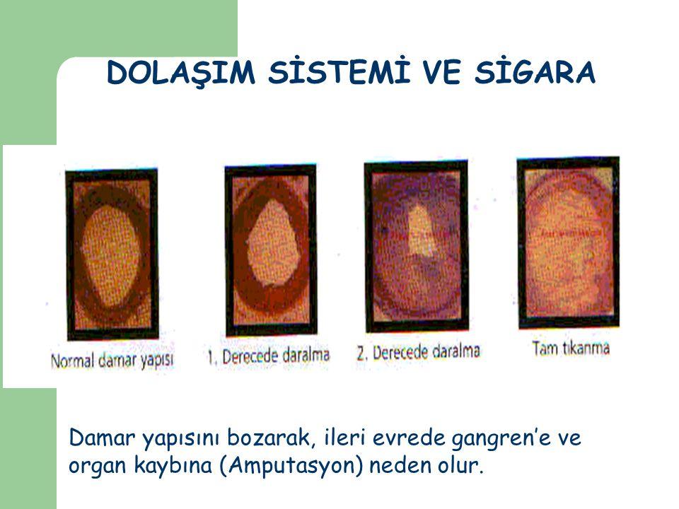 DOLAŞIM SİSTEMİ VE SİGARA Damar yapısını bozarak, ileri evrede gangren'e ve organ kaybına (Amputasyon) neden olur.