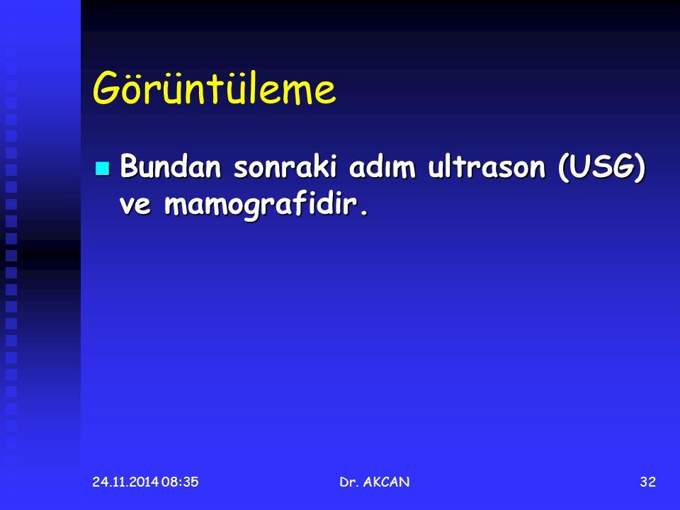Görüntüleme Bundan sonraki adım ultrason (USG) ve mamografidir. Bundan sonraki adım ultrason (USG) ve mamografidir. 24.11.2014 08:36Dr. AKCAN32