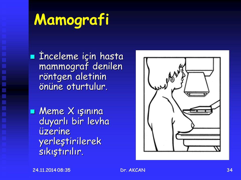 24.11.2014 08:36Dr. AKCAN34 Mamografi İnceleme için hasta mammograf denilen röntgen aletinin önüne oturtulur. İnceleme için hasta mammograf denilen rö