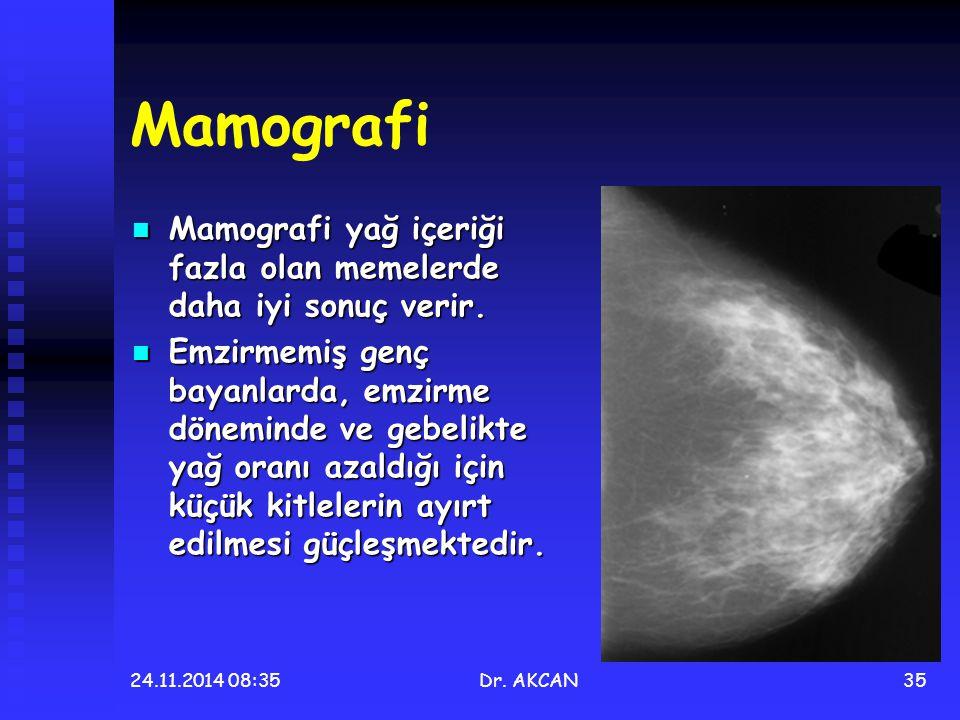 24.11.2014 08:36Dr. AKCAN35 Mamografi Mamografi yağ içeriği fazla olan memelerde daha iyi sonuç verir. Mamografi yağ içeriği fazla olan memelerde daha