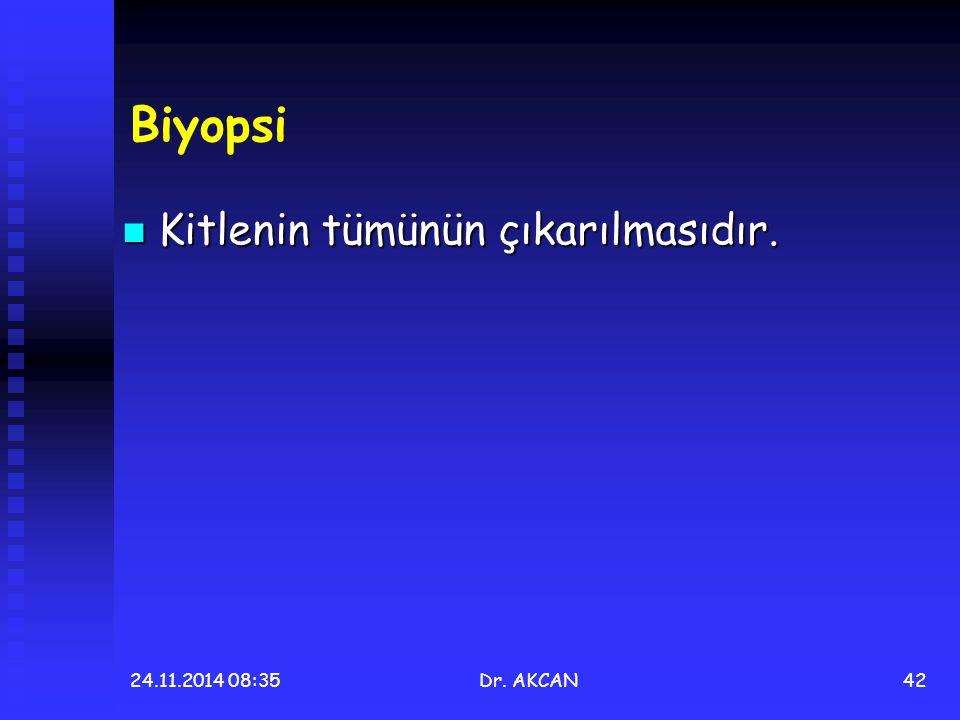 24.11.2014 08:36Dr. AKCAN42 Biyopsi Kitlenin tümünün çıkarılmasıdır. Kitlenin tümünün çıkarılmasıdır.