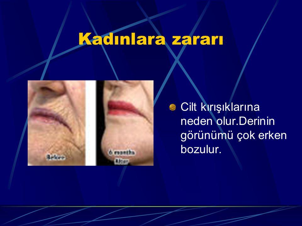 Kadınlara zararı Cilt kırışıklarına neden olur.Derinin görünümü çok erken bozulur.