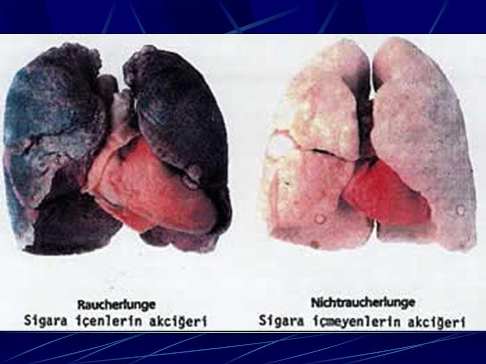 Pasif içiciler (çocuklar)  Günde 1 paket sigara içilen evde, çocuk 5-10 adet sigara içmiş gibidir.