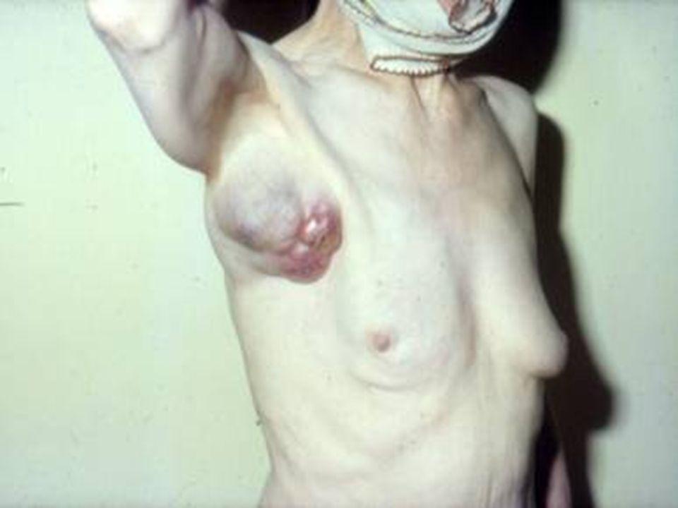 Meme kanserinin insidansı Kadınlarda görülen kanserlerin %30'unundan sorumludur ve kansere bağlı ölümlerin 2.