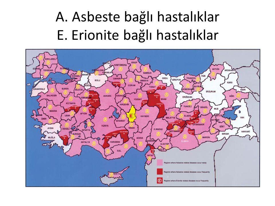 A. Asbeste bağlı hastalıklar E. Erionite bağlı hastalıklar