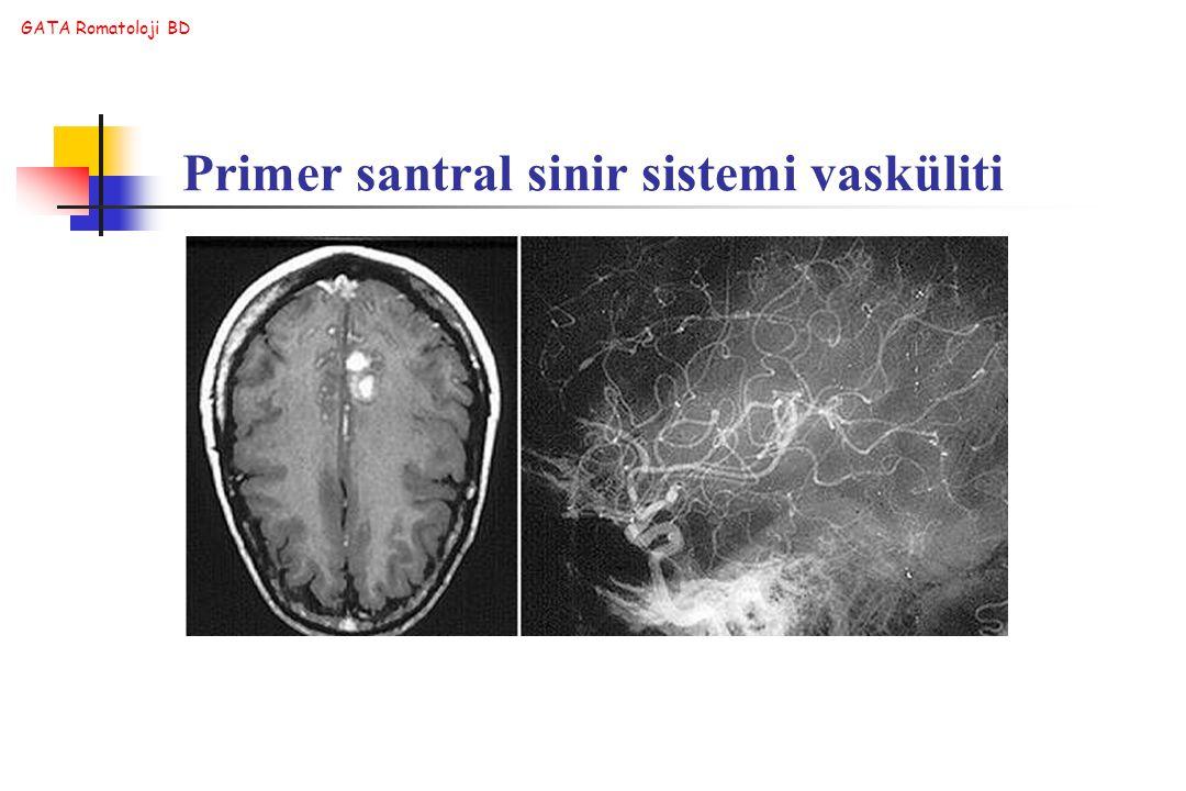 GATA Romatoloji BD Primer santral sinir sistemi vasküliti