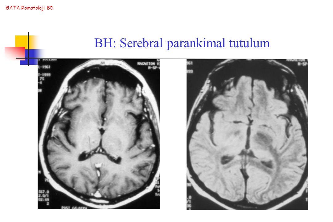 GATA Romatoloji BD BH: Serebral parankimal tutulum