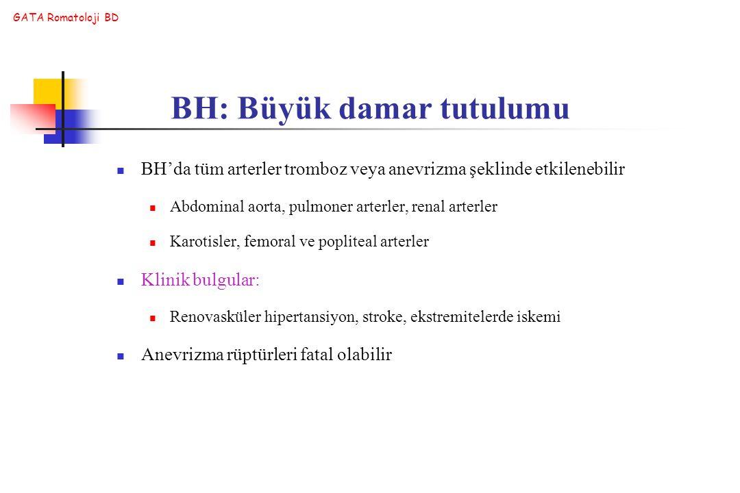 GATA Romatoloji BD BH'da tüm arterler tromboz veya anevrizma şeklinde etkilenebilir Abdominal aorta, pulmoner arterler, renal arterler Karotisler, fem
