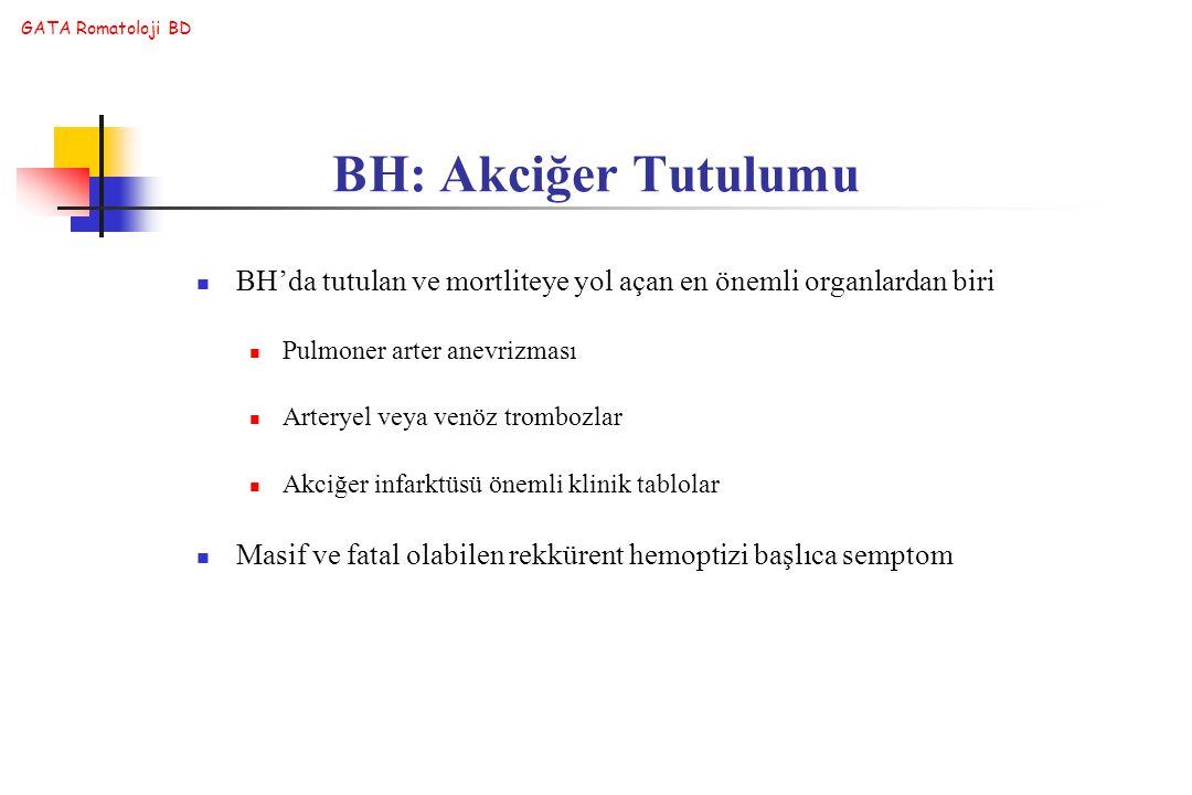 GATA Romatoloji BD BH'da tutulan ve mortliteye yol açan en önemli organlardan biri Pulmoner arter anevrizması Arteryel veya venöz trombozlar Akciğer i
