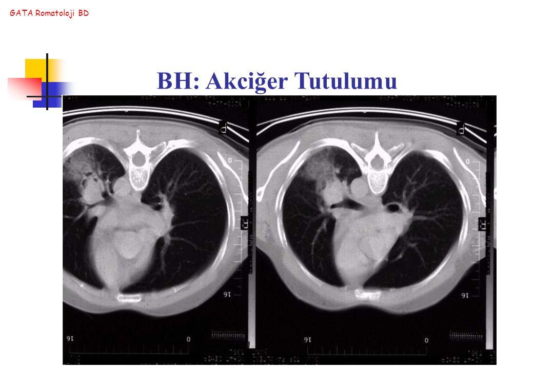 GATA Romatoloji BD BH: Akciğer Tutulumu