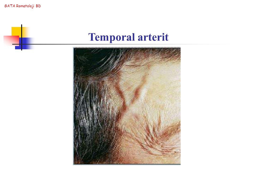 GATA Romatoloji BD Temporal arterit