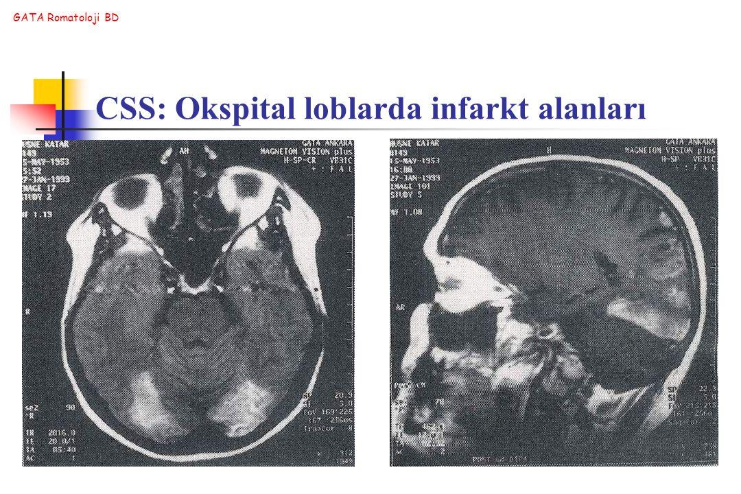 GATA Romatoloji BD CSS: Okspital loblarda infarkt alanları