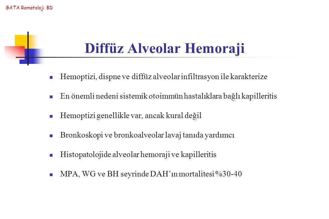 GATA Romatoloji BD Hemoptizi, dispne ve diffüz alveolar infiltrasyon ile karakterize En önemli nedeni sistemik otoimmün hastalıklara bağlı kapilleriti